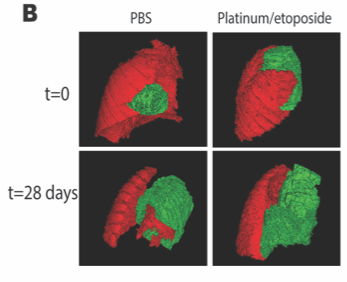 IMAGE B: 3D reconstructions of lung (red) and tumour (green) in mice treated with vehicle (PBS) or with standard of care chemotherapy (Platinum/etoposide).