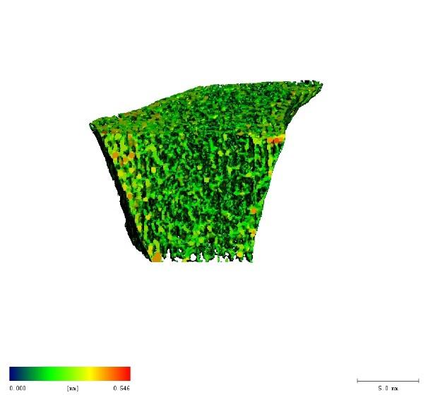 Trabecular density
