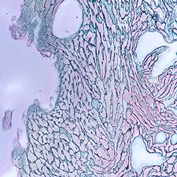 Fibrosis and atherosclerosis
