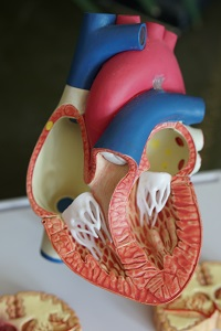 Model diseased heart