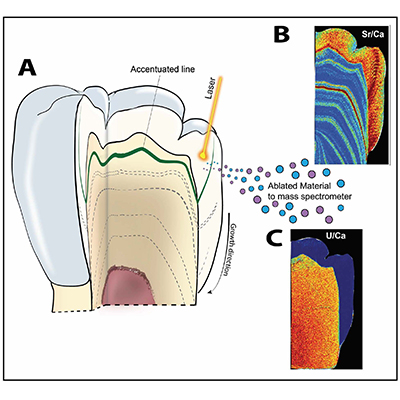 Schematic diagram of the use of laser ablation analysis to map the concentration of strontium and uranium within a tooth. Renaud Joannes-Boyau, SCU.