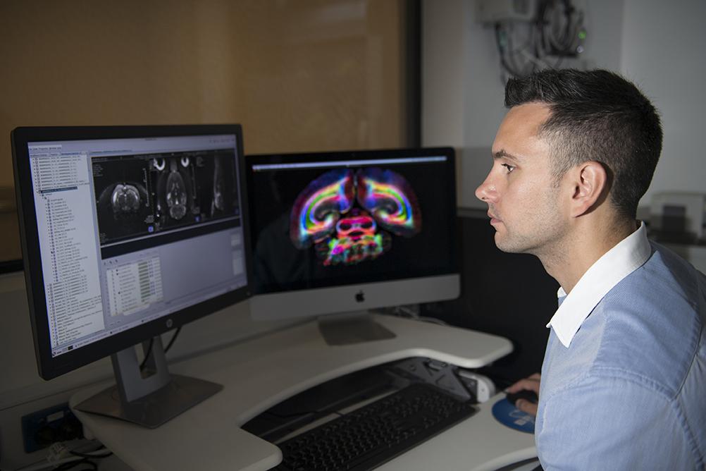 9.4T MRI