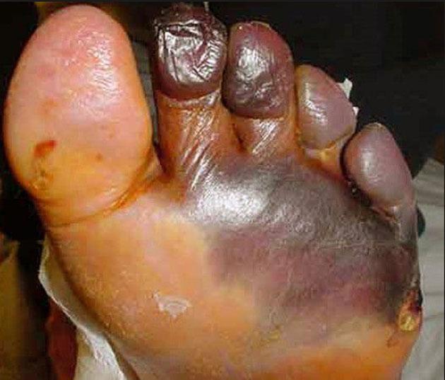 foot yuck
